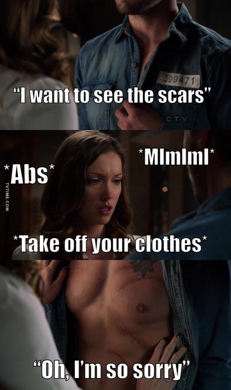 Yeah, scars